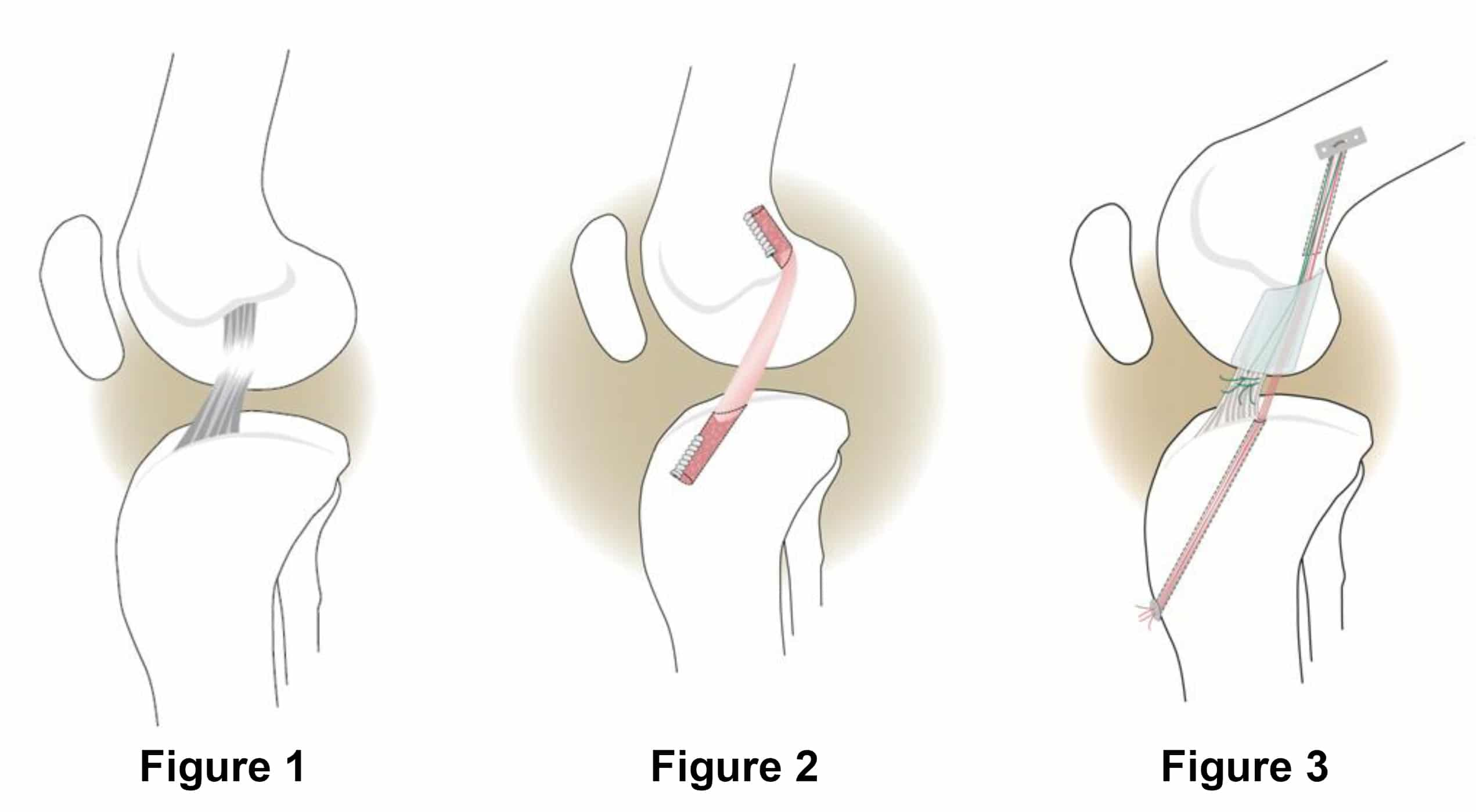 ACL Knee Surgery Picture Blog, May, 2016